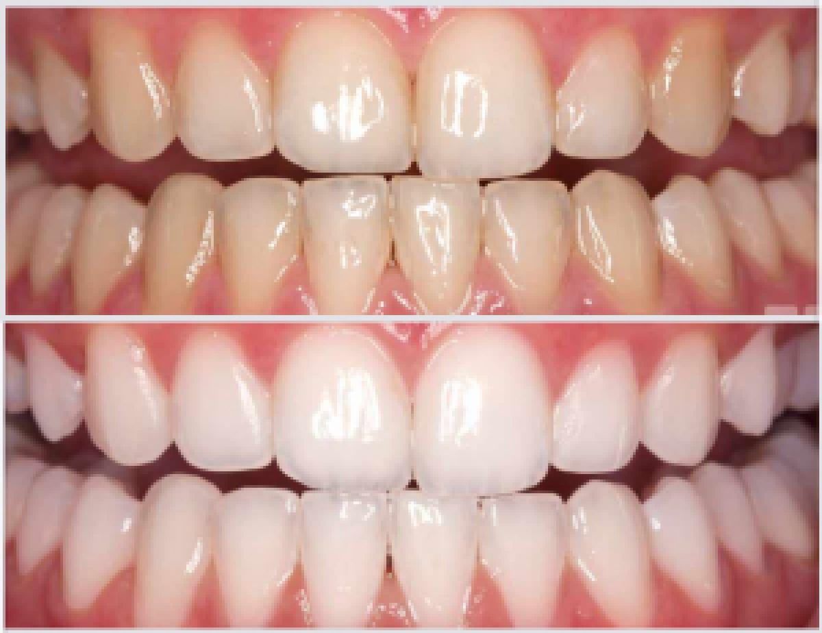Lo sbiancamento dentale - Dentisti a Napoli. Studio dentistico Napoli